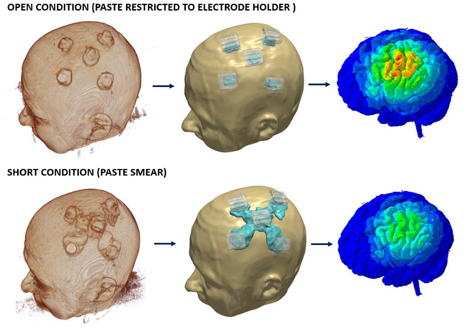 MRI/fMRI data integration in neurotargeting software