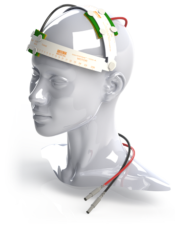 What is tDCS