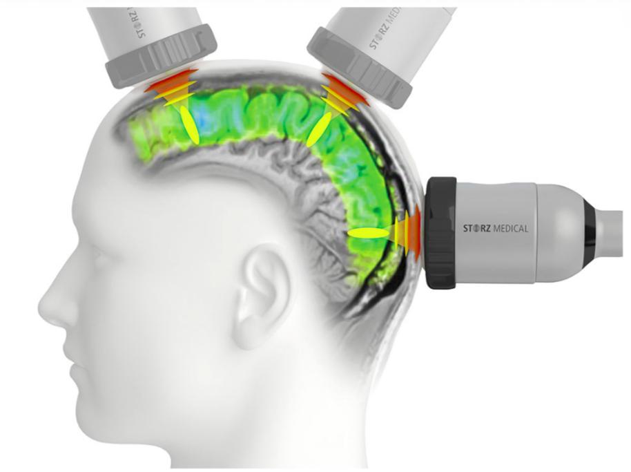 Soterix Medical Transcranial Pulse Stimulation (TPS) Webinar