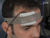 Physicians at Harvard Medical School demonstrate the application of tDCS using a Soterix 1x1 tDCS device.